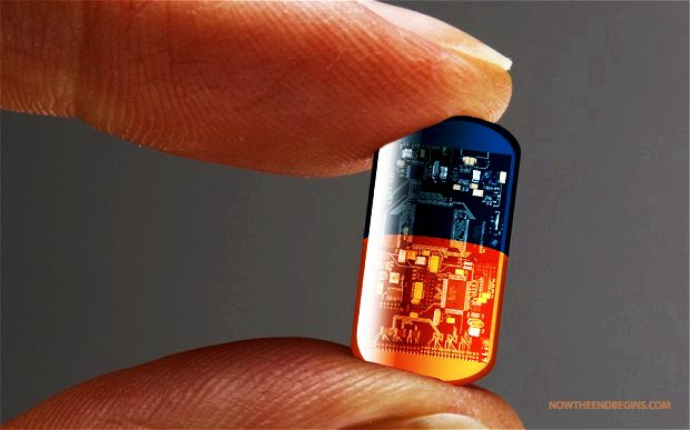 implanted chip tracking